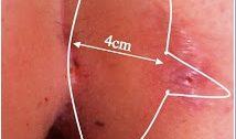 Kıl Dönmesi Karidakis Ameliyatı