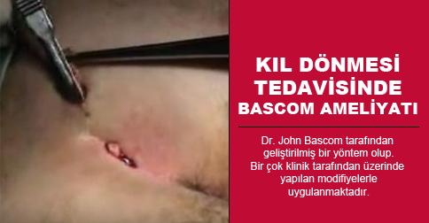 bascom-ameliyati