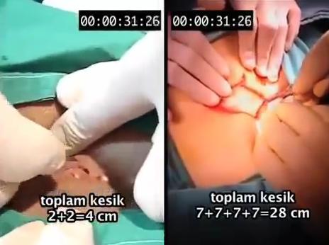 Ameliyatız Kıl Dönmesi