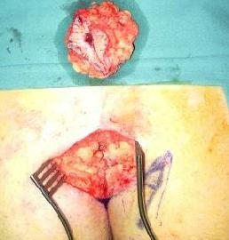 limberg flap ameliyatında çıkarılan yer ve kesilecek bölge