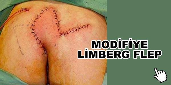 modifiye-limberg-flep