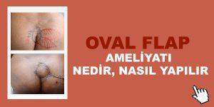 oval-flap-ameliyati-nasil-yapilir
