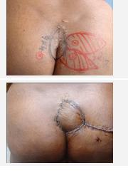 Oval Flap Ameliyatı